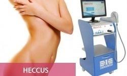 14-heccus1-250x150