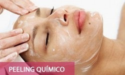 20-peeling-quimico-250x150 - Copia