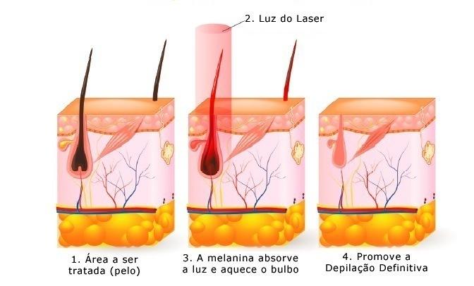 Depilação a Laser Fisest