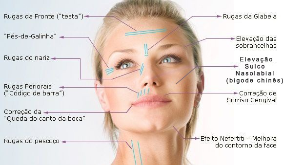 regiao-face-radiofrequenciafisest