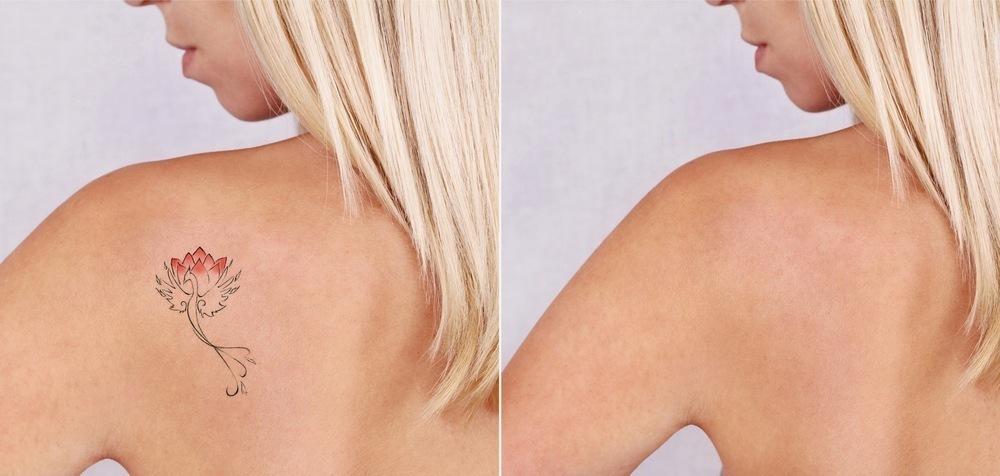 Laser para Remoção de Tatuagem na Fisest
