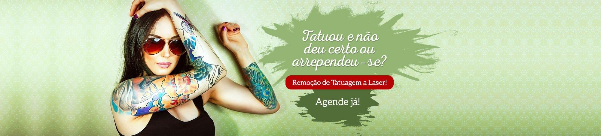 remoção-tatuagem-fisest-1
